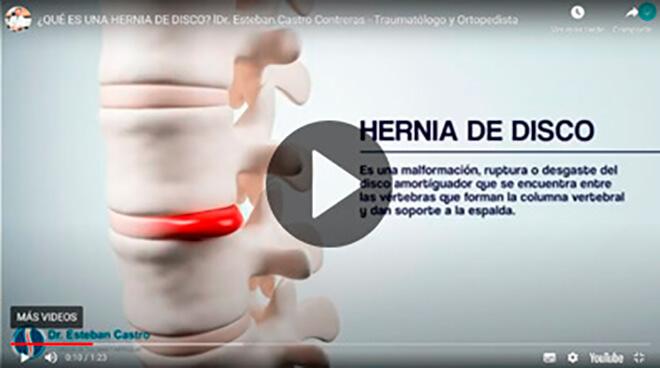 Hernia de Disco Dr. Esteban Castro Contreras - Traumatólogo y Ortopedista
